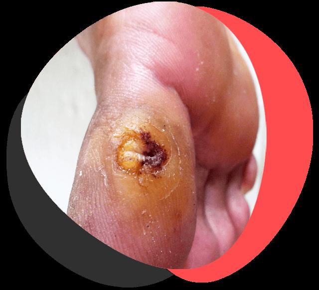 cuidado-con-las-heridas-dr-pies-diabetes-tijuana